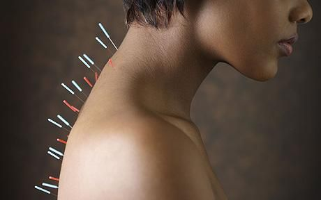 acupuncture_1248178c.jpg