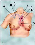 port-a-catheter.jpg