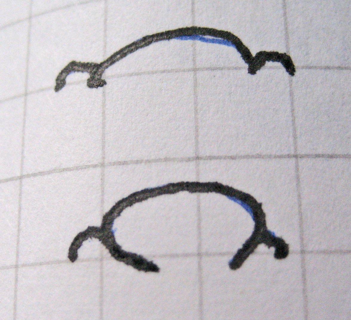 1er dessin  En haut à gauche, Ongles courts larges et plats avec phalange spatulé courte et plate  Impulsivité, violence (héréditaire ou organique)