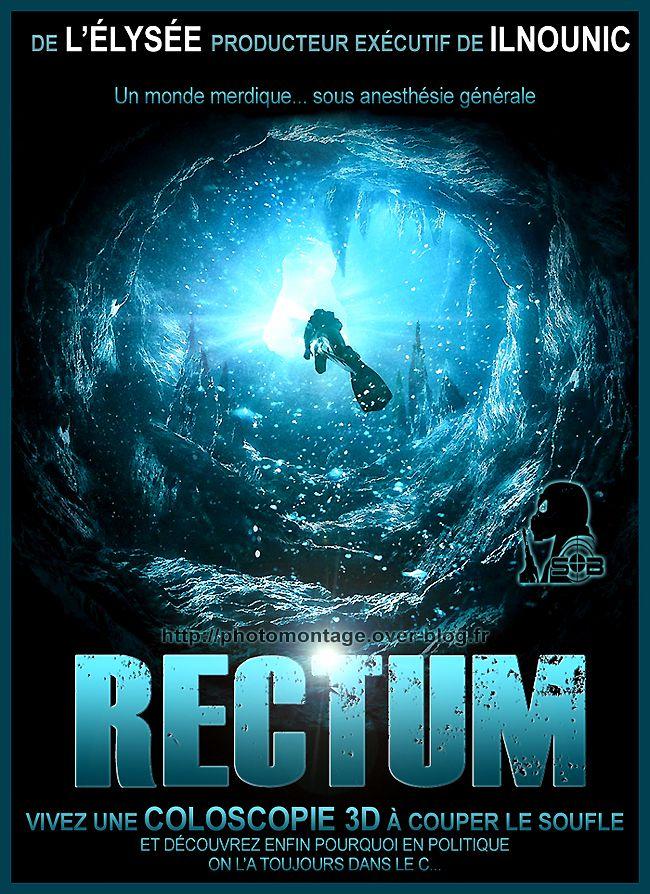 rectum-fake-SB-le-sniper2.jpg
