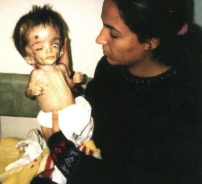 http://idata.over-blog.com/1/07/22/91/Anti-War-Protests/Anti-war/depleted_uranium_baby.jpg