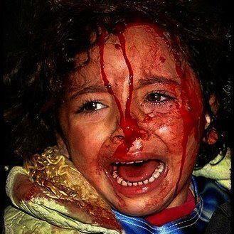 enfant-palestinien-blesse.jpg
