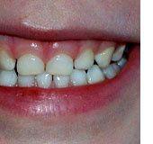 Orthodontie : penser prévention