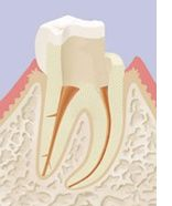 Endodontiste