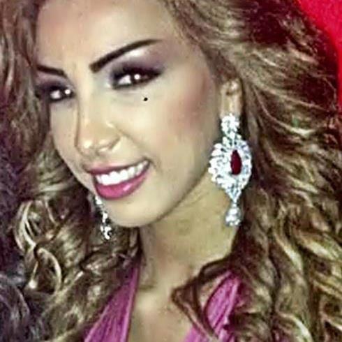 Tout le Maroc ou presque parle du nouveau nez de Dounia Batma