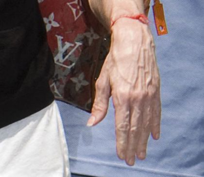 Madonna has solution injected into her hands