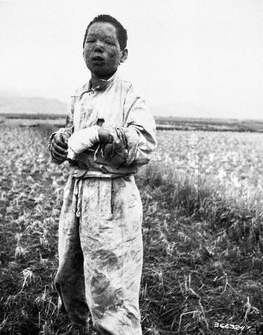 Boy victim of napalm