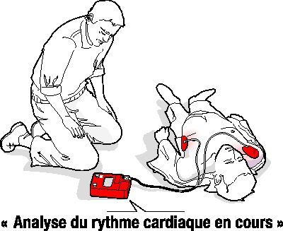 photo analyse cardiaque