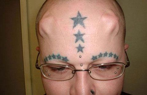 star-head-implant.jpg