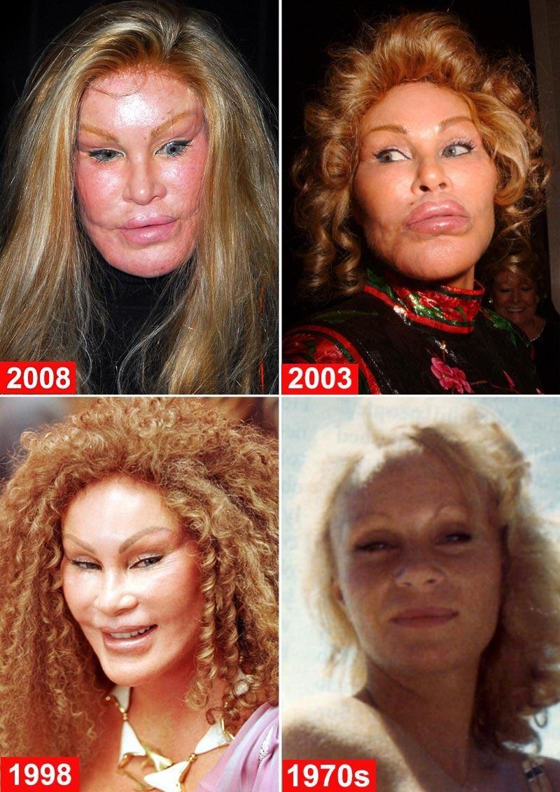jocelyn wildenstein 2010. Jocelyn Wildenstein Wiki
