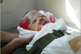 Palestine-enfant-irradie.jpg