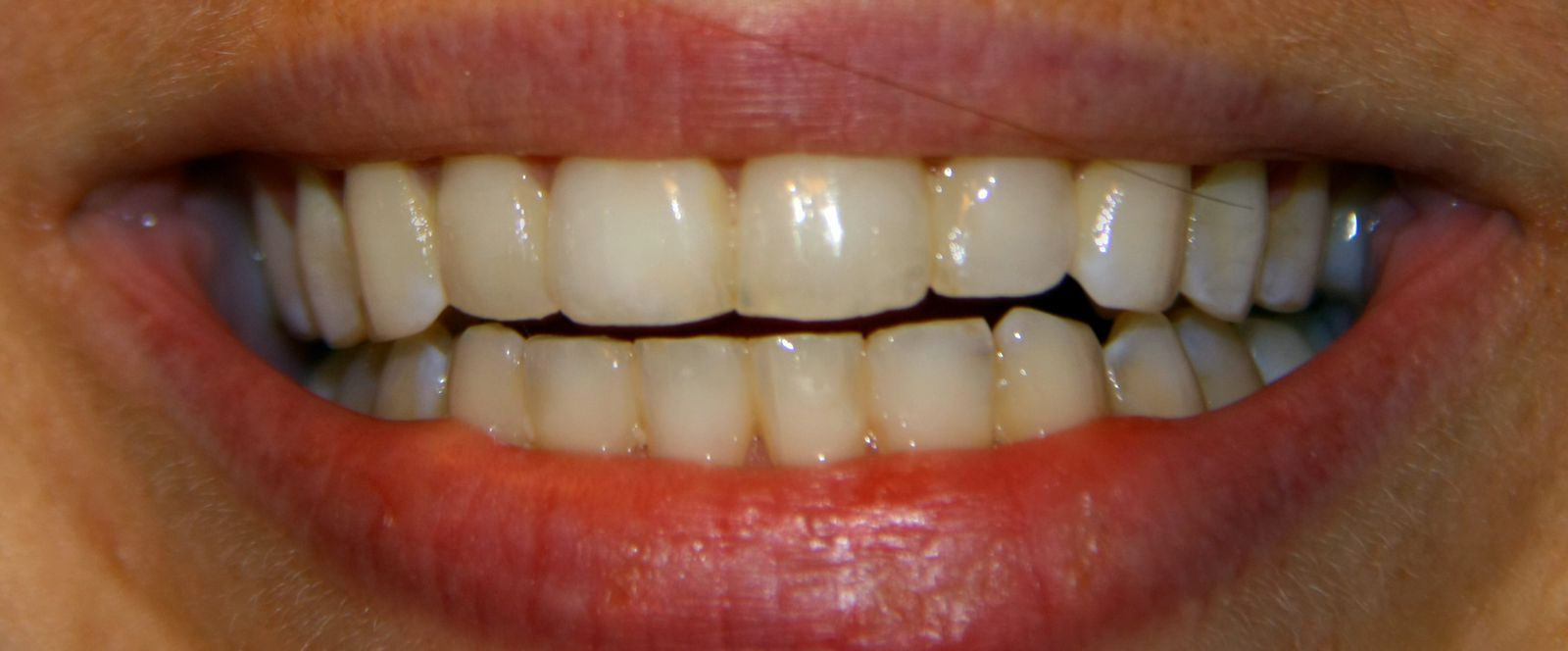 site mon orthodontie invisalign a bandol.over blog.fr