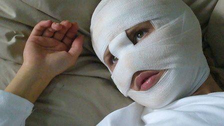 bandaged.jpg
