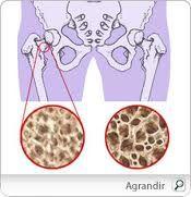 osteoporosi.jpg