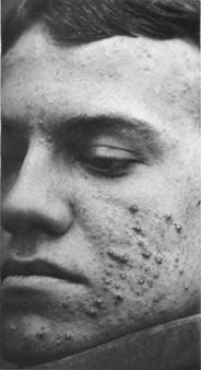 Acne vulgaris | Source last Fox | first George Henry | title Photograp