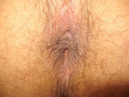 male anus | Source | Date | Author Lukkas2000 | Permission | other_ve