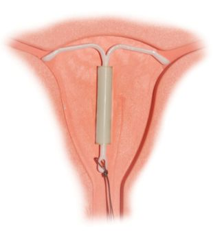 1 Mirena IntraUterine System 1 Mirena Hormonspirale | Source | Author