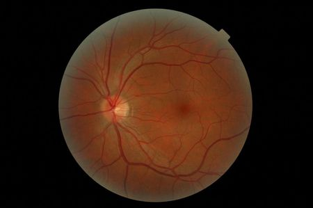 My left eye retina