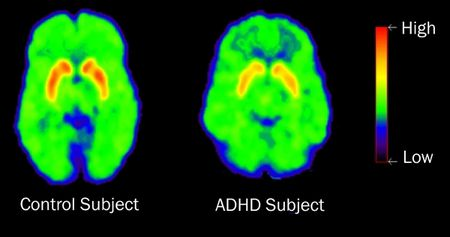1 High Dopamine Transporter Levels Not Correlated with ADHD Contradict