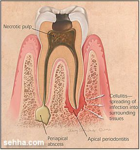 Dental abscess2
