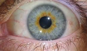 oeil bleu orange