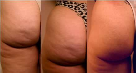 exemple-cellulite.jpeg