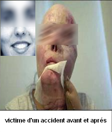 victime-accident-consequence-de-l-alcool_-islam.png